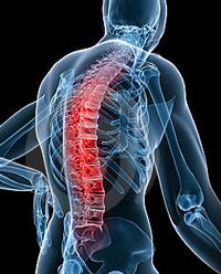 כאבים בגב תחתון הפוגעים בעמוד השדרה